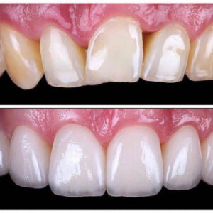 Patient Spotlight before and after - affordable dentist in Dallas