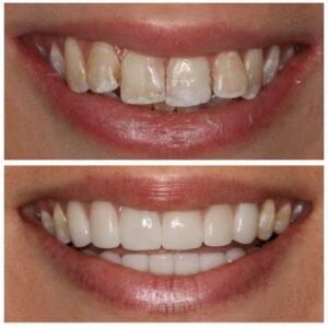 family dentistry in dallas - Patient Spotlight