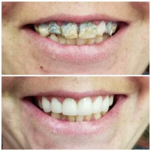 cosmetic dental dallas - Patient Spotlight