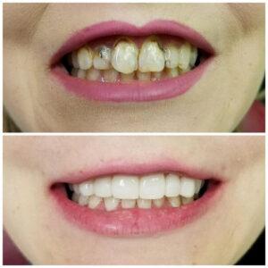 cosmetic dentist dallas tx - Patient Spotlight