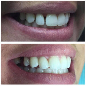 dallas cosmetic dentists - Patient Spotlight