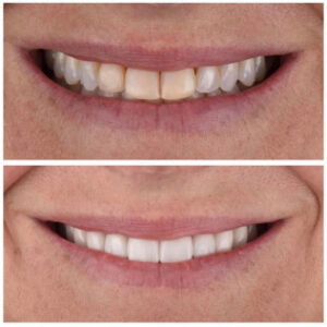 best cosmetic dentist dallas - Patient Spotlight