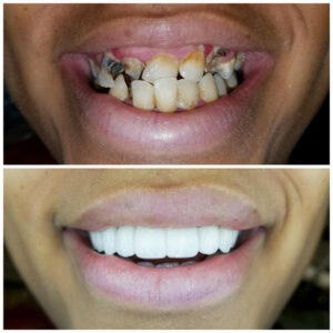 affordable dentistry & orthodontics dallas tx - Patient Spotlight
