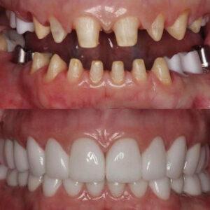 Patient Spotlight | Oakheights Family Dental and Orthodontics