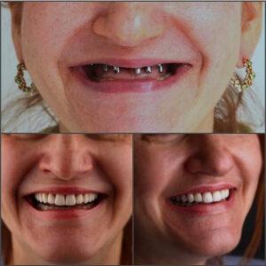 dallas family dental - Patient Spotlight