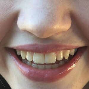 local cosmetic dentistry - Patient Spotlight