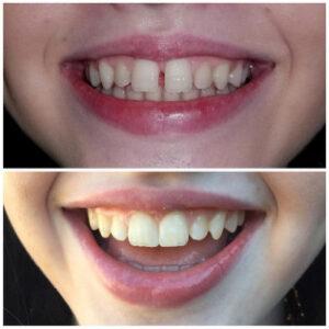 cosmetic dentistry dallas - Patient Spotlight