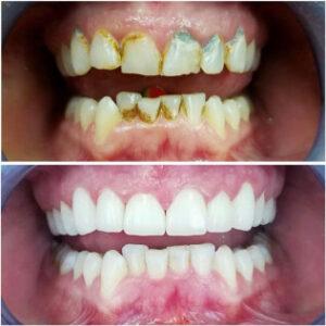 cheap dentist in dallas tx - Patient Spotlight